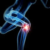 http://www.kneeandhip.co.uk/wp-content/uploads/2015/11/26850082-woman-having-acute-pain-in-the-knee.jpg