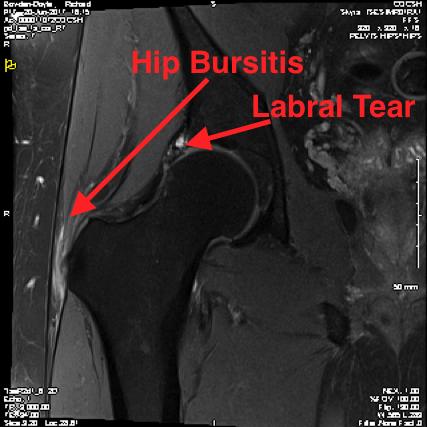 http://www.kneeandhip.co.uk/wp-content/uploads/2016/08/1.-Trochanteric-Bursitis-and-Hip-Cartilage-Tear-on-MRI.png