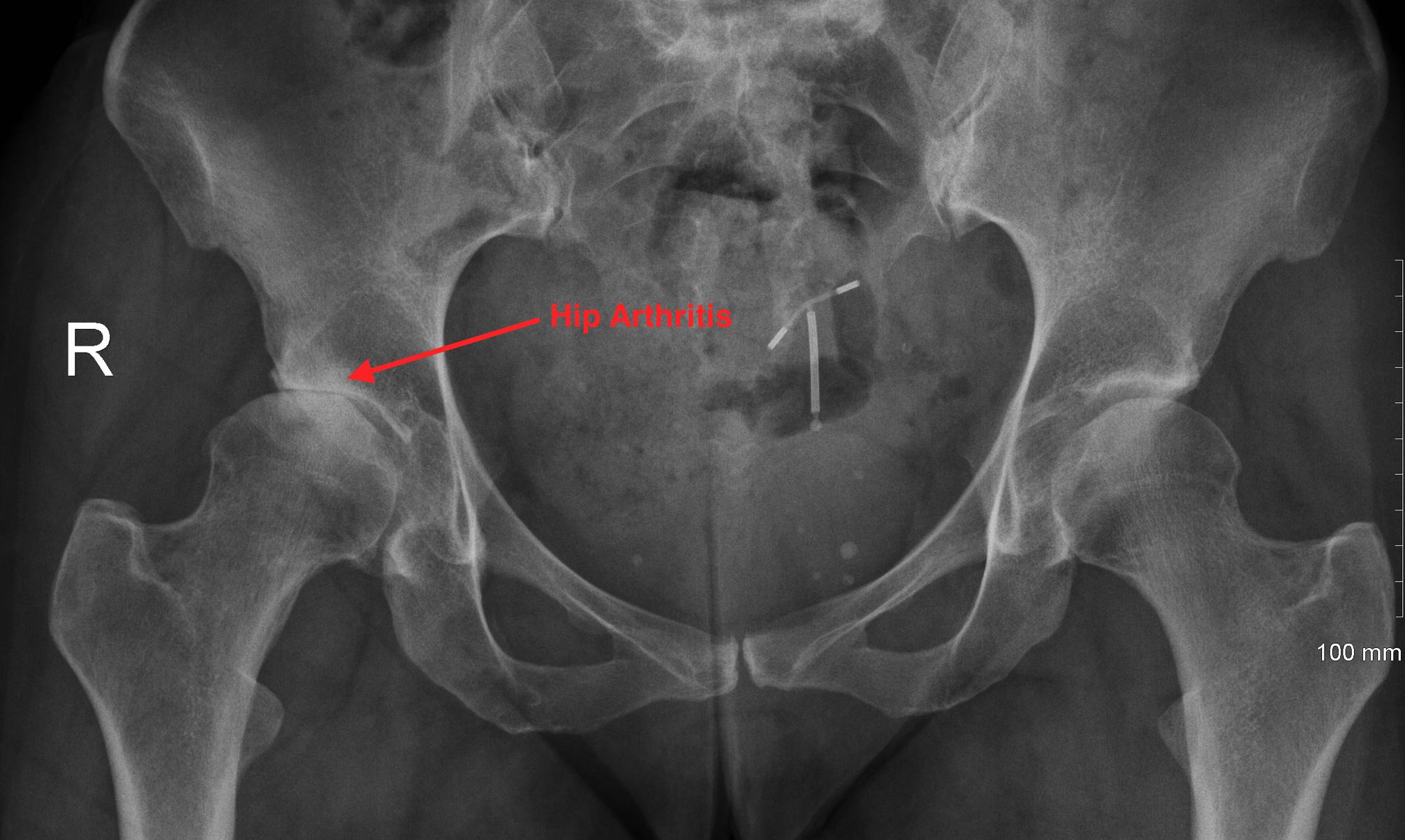 http://www.kneeandhip.co.uk/wp-content/uploads/2016/08/3.-Hip-Arthritis.png