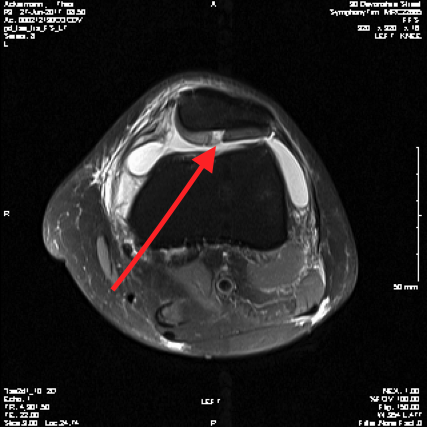 http://www.kneeandhip.co.uk/wp-content/uploads/2017/02/2.-Patella-Cartilage-Defect-on-MRI.png
