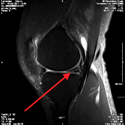http://www.kneeandhip.co.uk/wp-content/uploads/2017/02/5.-Meniscal-Tear-on-MRI.png