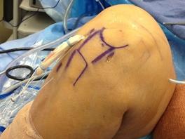 http://www.kneeandhip.co.uk/wp-content/uploads/2017/02/ACL-Surgery.jpg