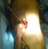 http://www.kneeandhip.co.uk/wp-content/uploads/2017/07/2.Osteotomy-operation.jpg
