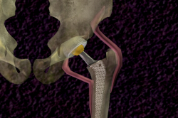 schematic-hip-replacement