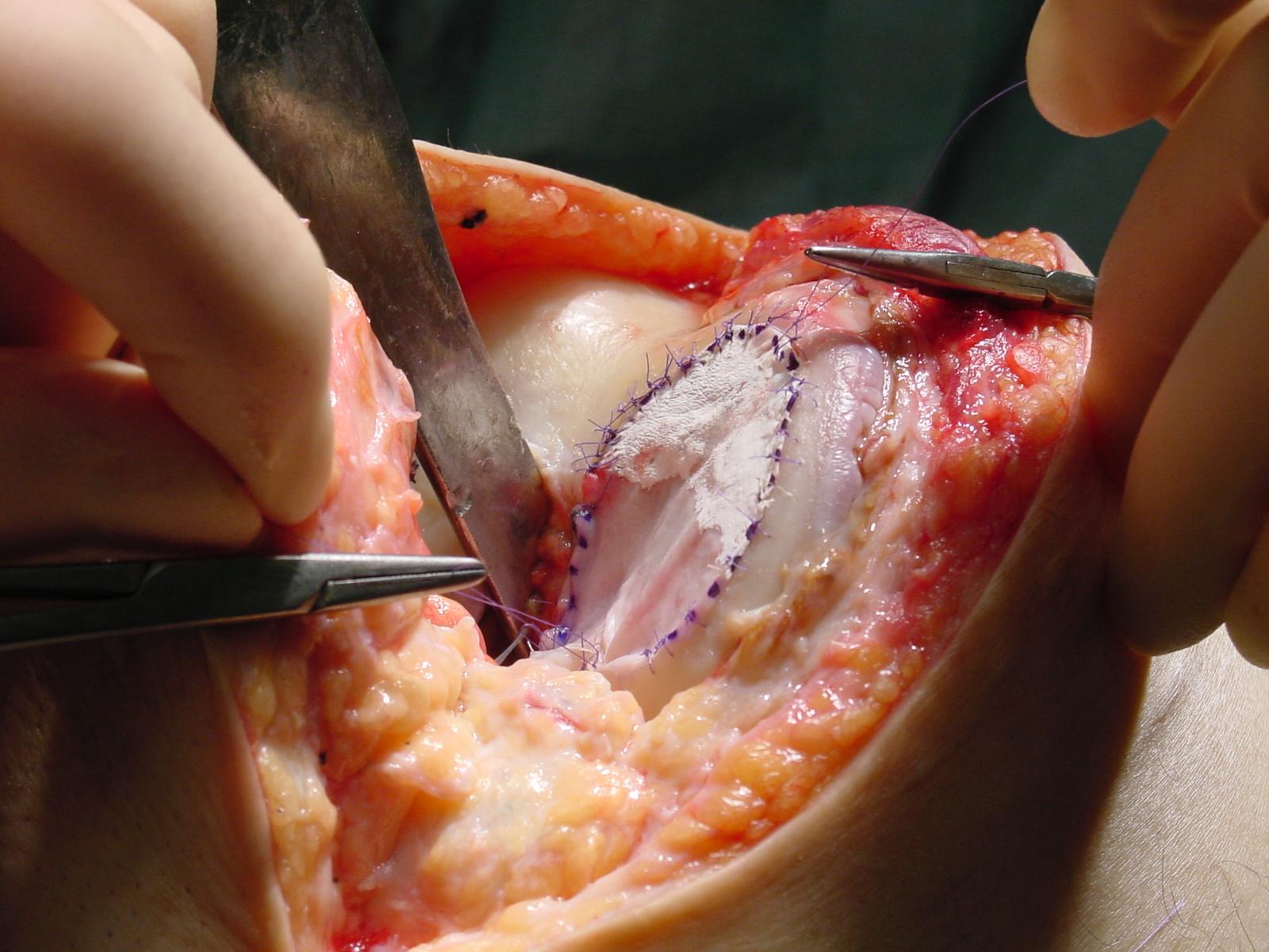 https://www.kneeandhip.co.uk/wp-content/uploads/2017/02/3.-CartilageTransplant.jpg